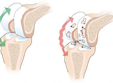 Artros i knäleder